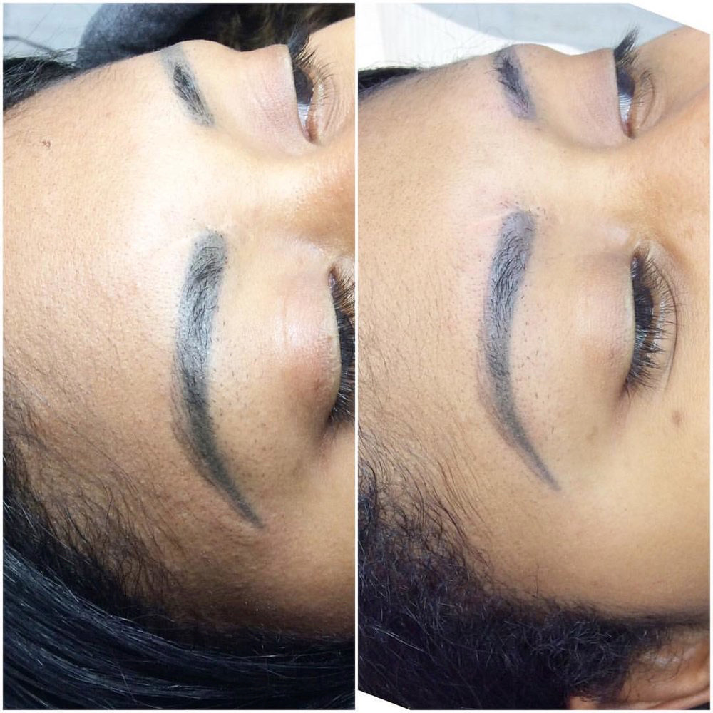 Tattoo Removal and Permanent Makeup Removal - B-Lashes